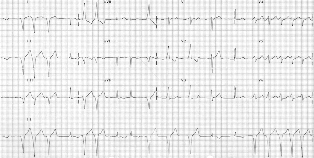 ECG WPW with intermittent pre-excitation 2