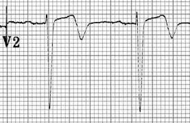 ECG Wellens Type A V2 biphasic T wave