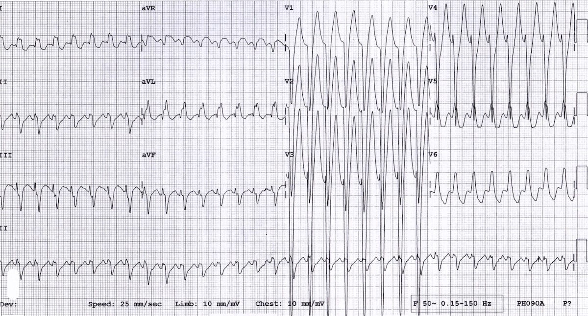 ECG Wolf-Parkinson-White AVRT 15 year old boy