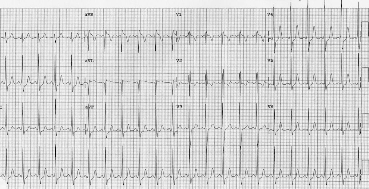 ECG Wolf-Parkinson-White AVRT 5 year old boy Reversion