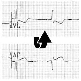 ECG aVL flip Inferior STEMI