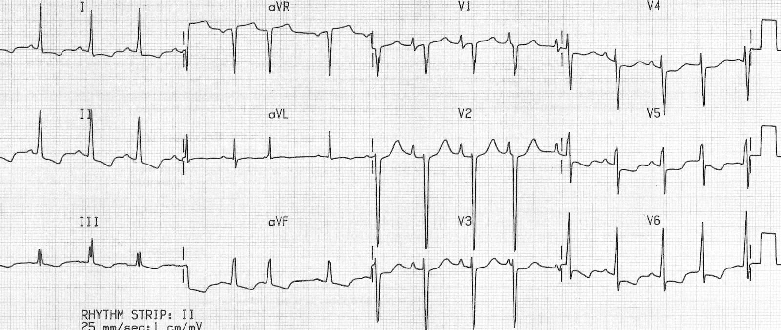 ECG biatrial enlargement 1