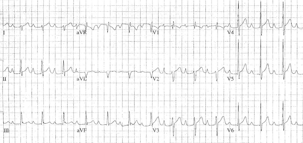 ECG biatrial enlargement 2
