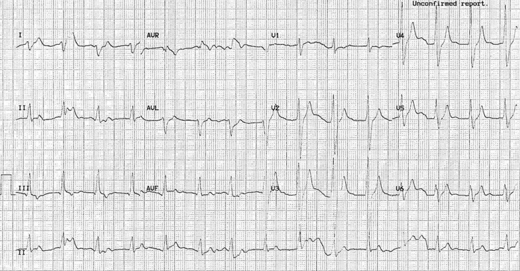 ECG carmbamazepine 3