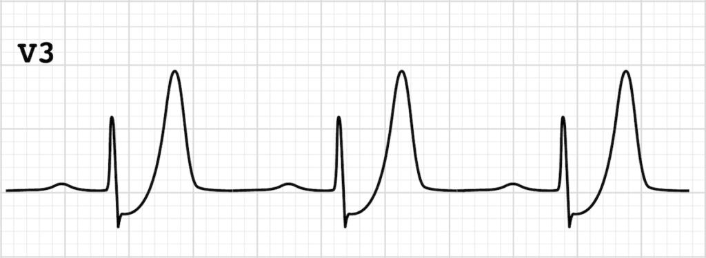 ECG de Winter T-waves V3 strip