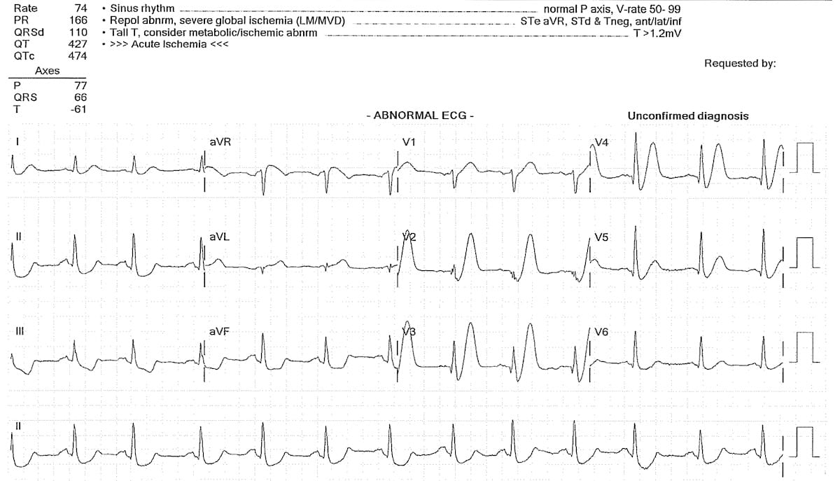 ECG de Winter waves proximal LAD occlusion