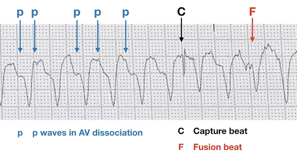 ECG features of VT AV dissociation capture beat fusion beat