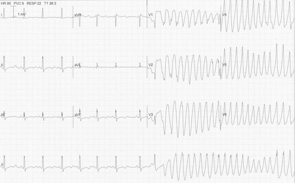 ECG hypokalaemia torsades 2