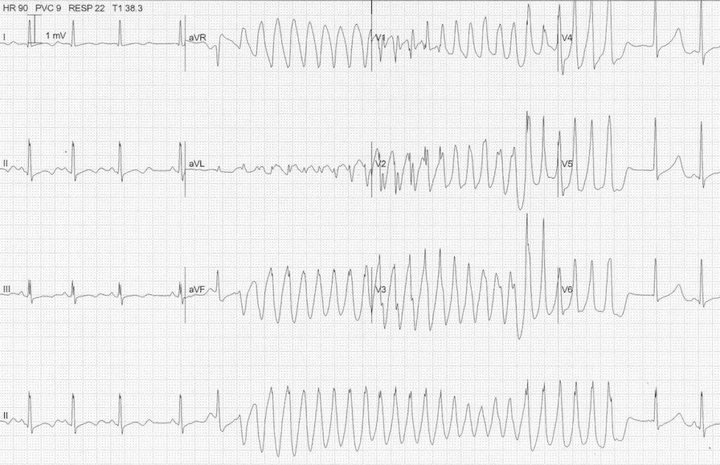 ECG hypokalaemia torsades 3