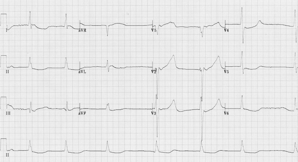 ECG hypothermia prolonged QTc