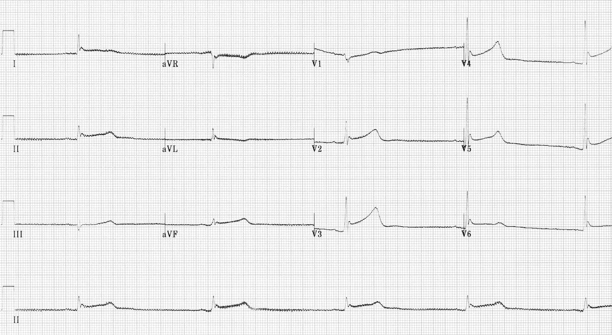 ECG hypothermia shiver artefact bradycardia long QT