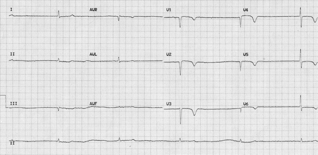 ECG hypothyroid myxoedema coma 1