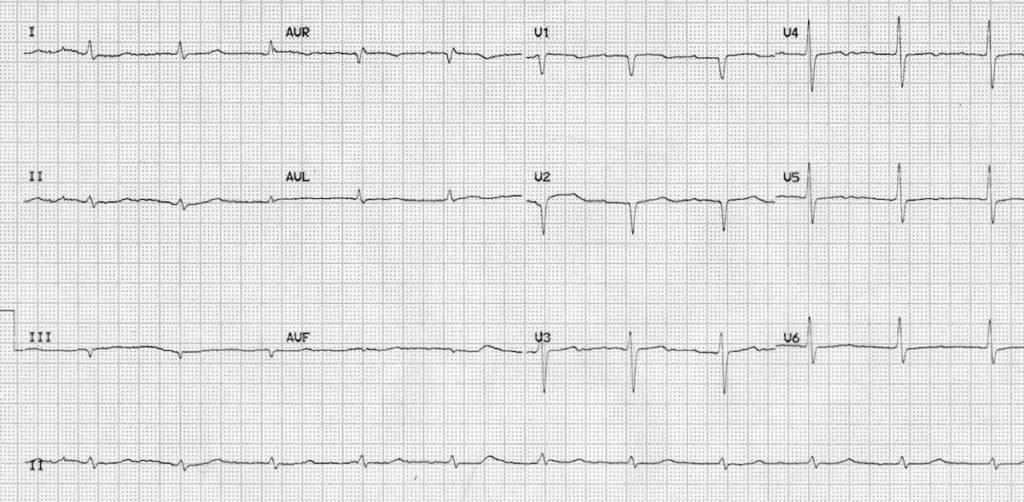 ECG hypothyroid myxoedema coma 2