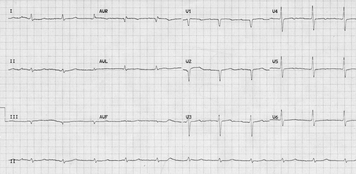 Hypothyroidism ECG changes • LITFL • ECG Library Diagnosis