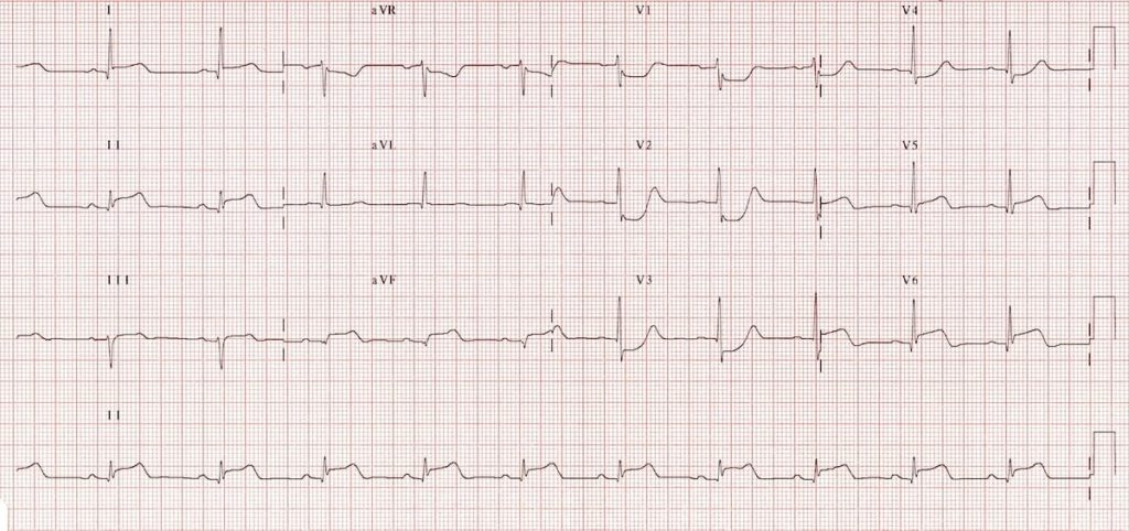 ECG inferoposterolateral