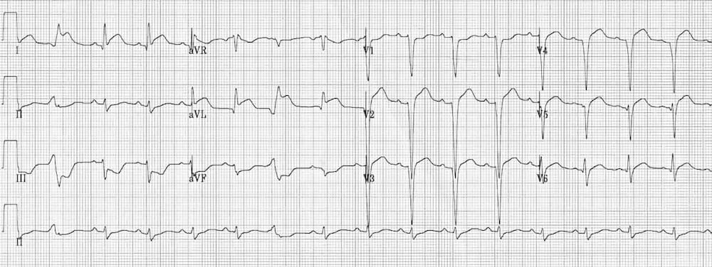 ECG lateral AMI Reciprocal ST depression