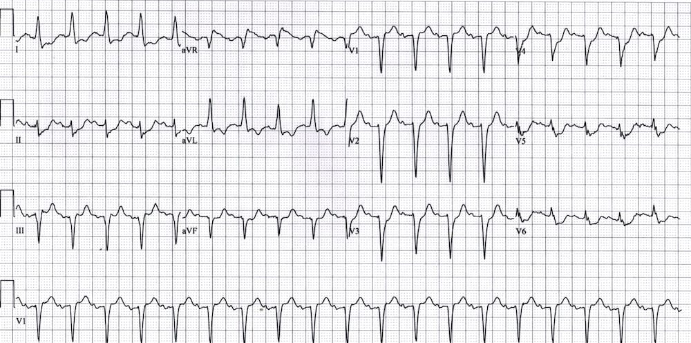 ECG left main coronary artery occlusion LMCA