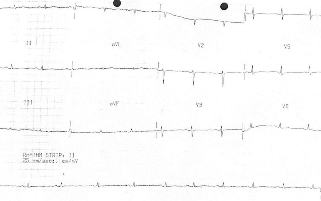 ECG low QRS voltage