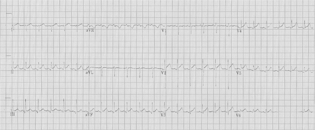 ECG myocarditis 2