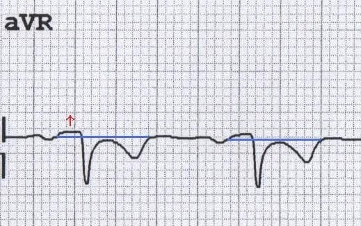 ECG pericarditis aVR PR elevation