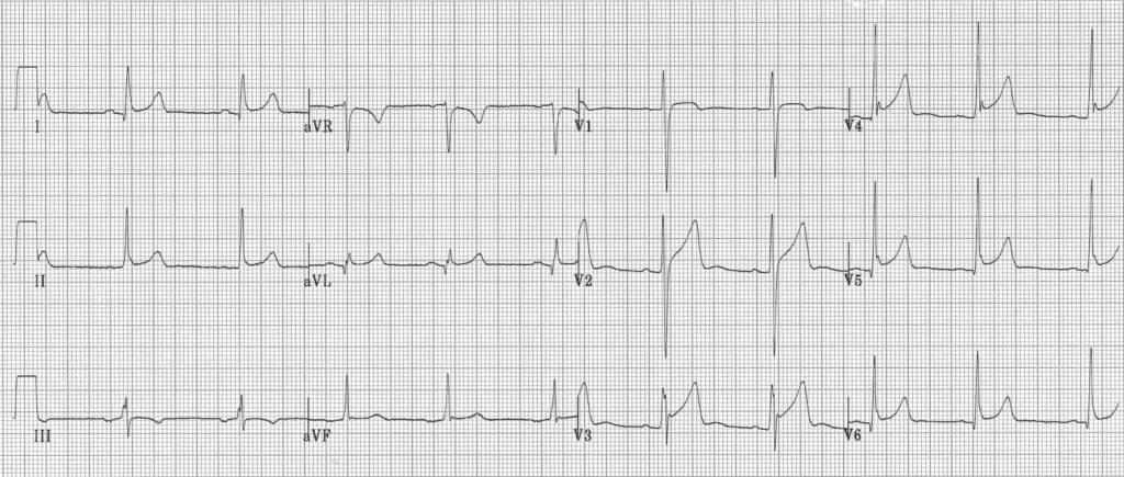 ECG pericarditis-or-BER