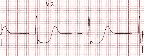 ECG posterior infarction in V2