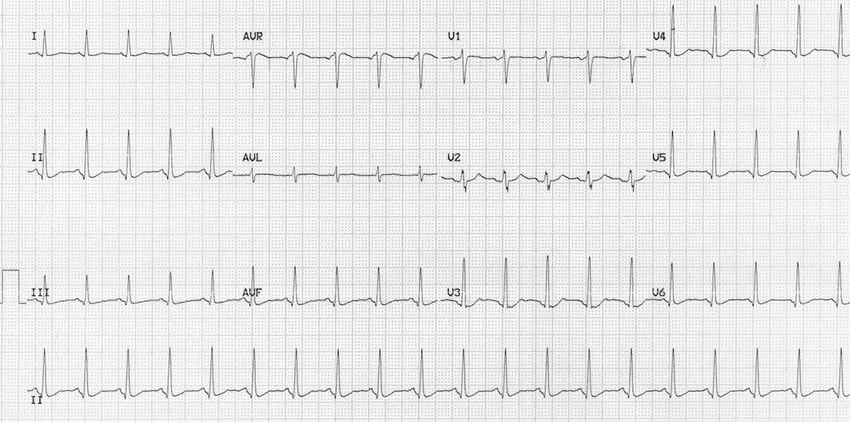 ECG quetiapine overdose 2