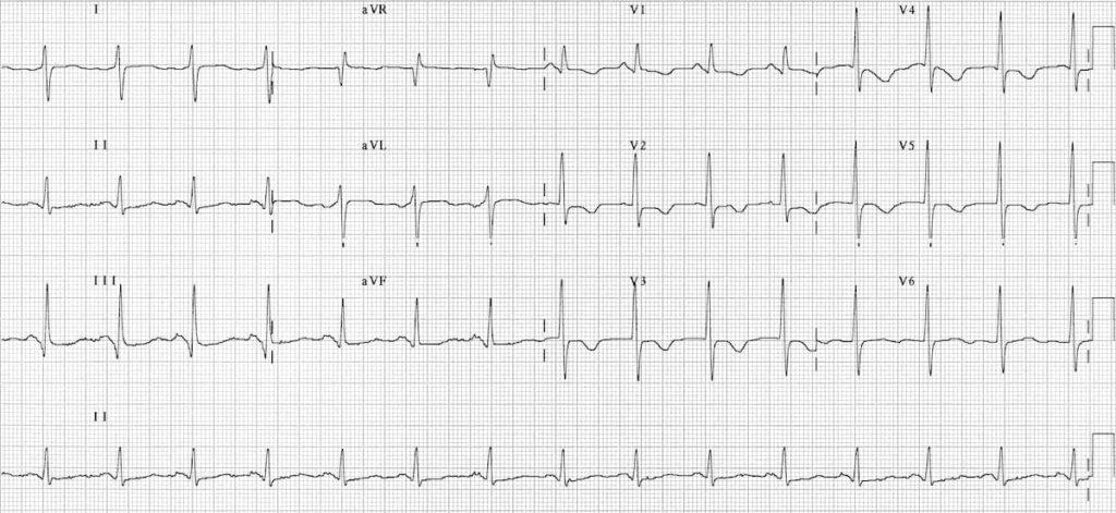 ECG right sided pulmonary embolus