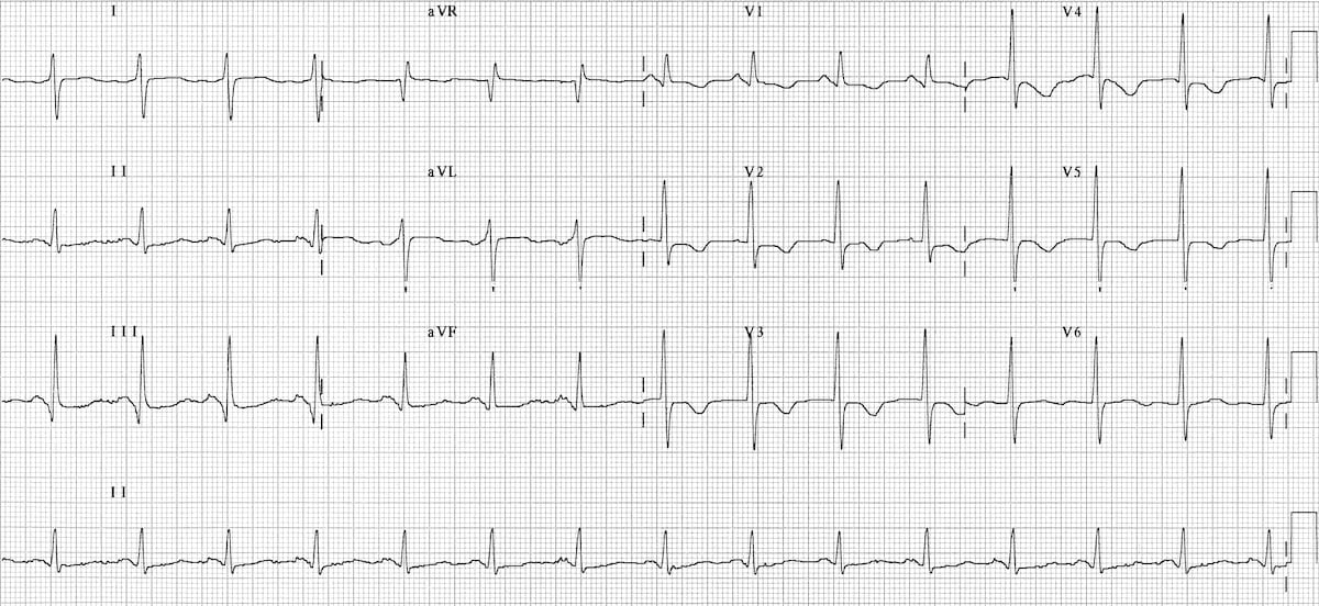 ECG right sided pulmonary embolus