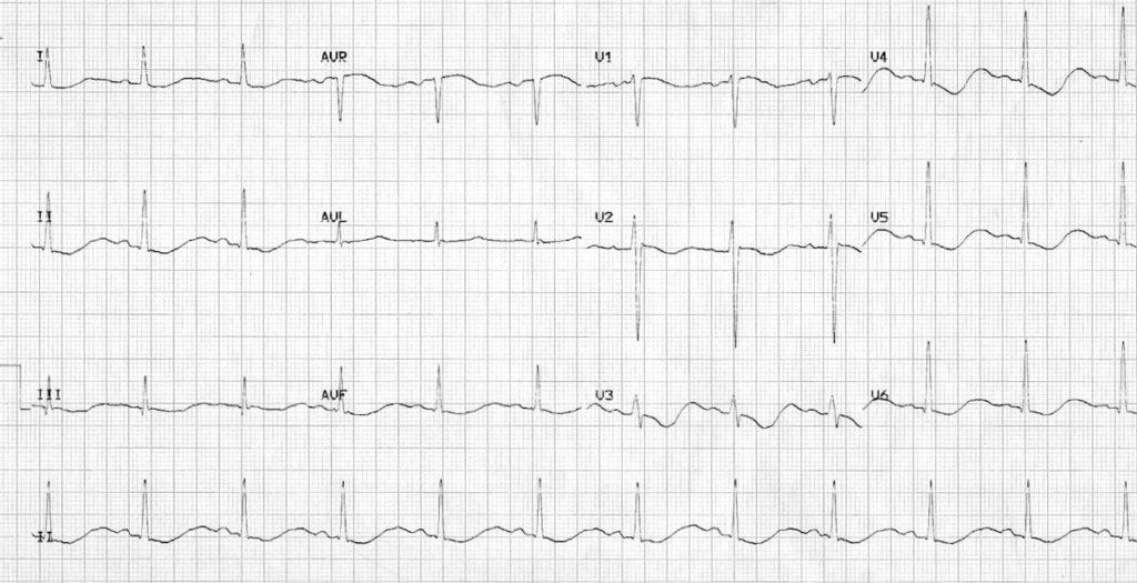 ECG severe hypokalemia serum potassium 1.7