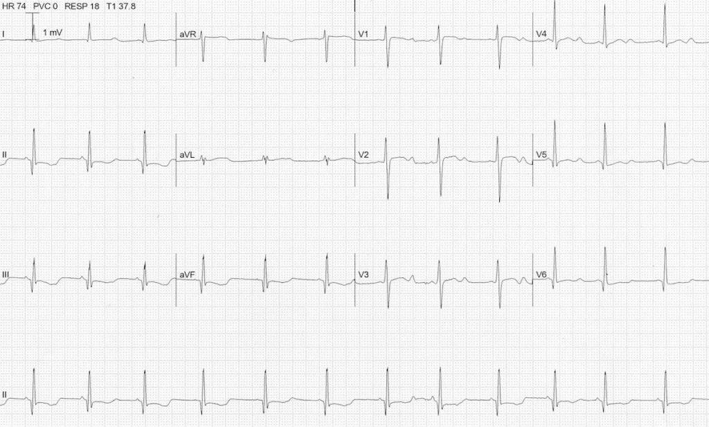 ECG severe hypokalemia serum potassium 1.9