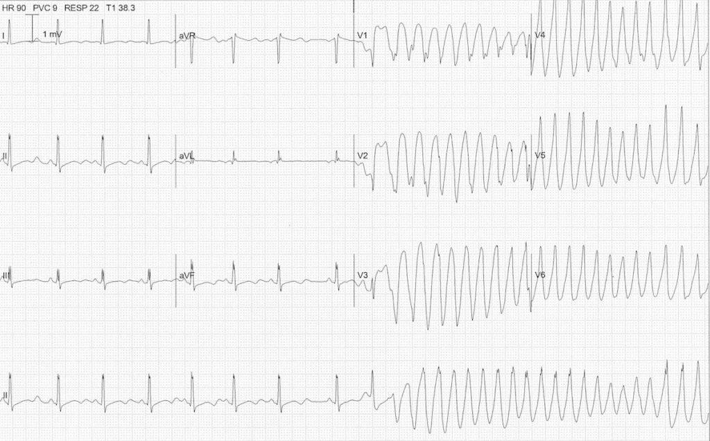 ECG severe hypokalemia serum potassium 2.0 TDP