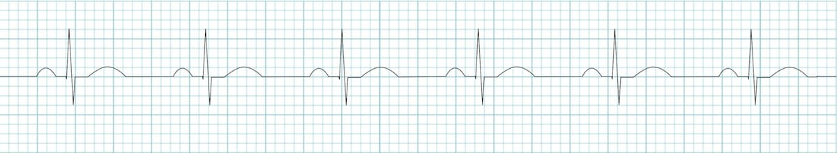 ECG strip Sinus rhythm