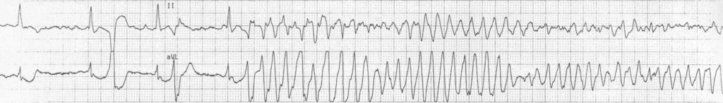 ECG strip Torsades de pointes TDP 2 2