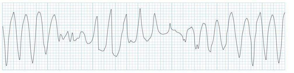 ECG strip Torsades de pointes TDP