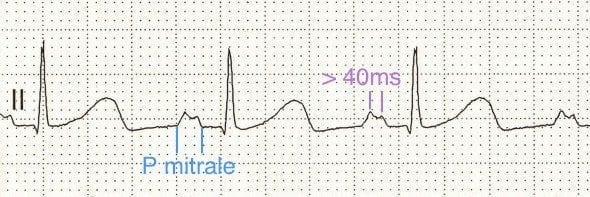 ECG strip bifid P wave p mitrale