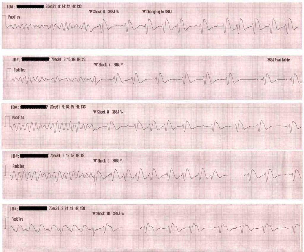 ECG ventricular fibrillation VF rhythm strips