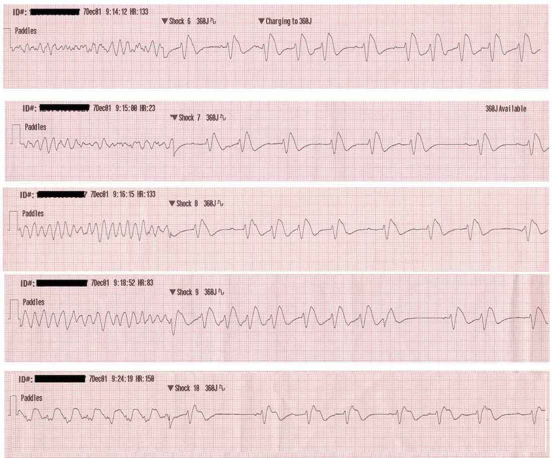 image about Printable Ekg Strips referred to as Ventricular Fibrillation (VF) LITFL ECG Library Prognosis