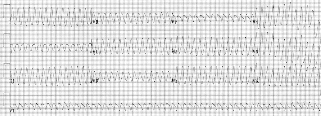 ECG ventricular flutter 4 4