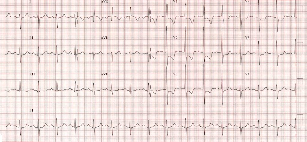 ECGH RVH Right ventricular hypertropy RV Strain