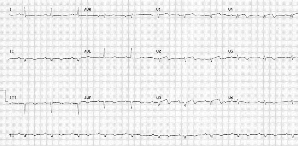 Low voltage in V1-6 due to prior massive anterior MI