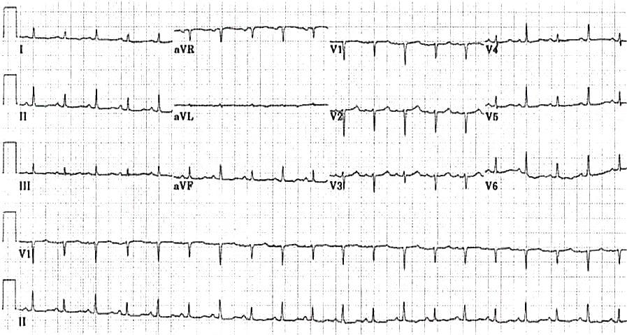 ECG_massive_pericardial_effusion