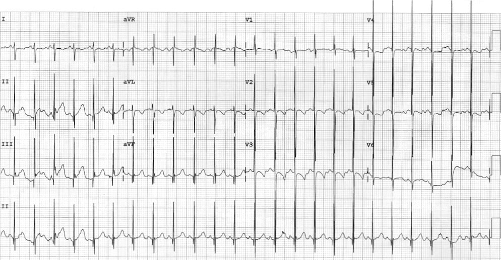 ECg Biventricular hypertrophy in a child with VSD