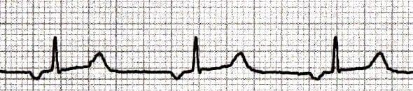 Ectopic-Atrial-Rhythm ECG 2