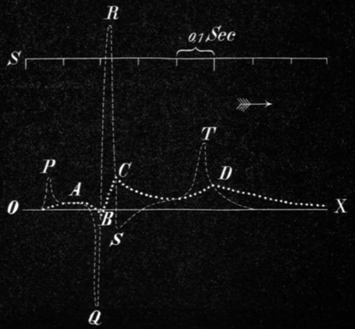 Einthoven 1895 Electrocardiogramm