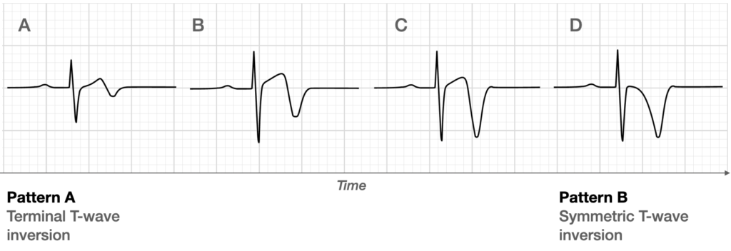 Evolution of T-wave inversion [A-D] after coronary reperfusion in STEMI reperfusion and in Wellens syndrome (NSTEMI)