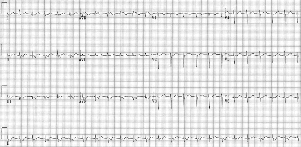 Fast-Slow AVNRT ECG 5