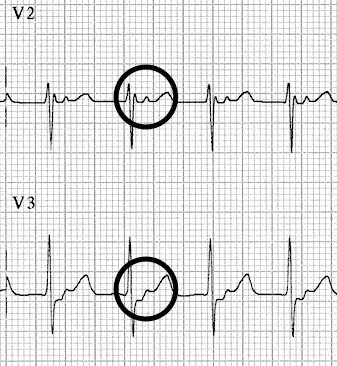 Fast-Slow-AVNRT ECG Retrograde P waves