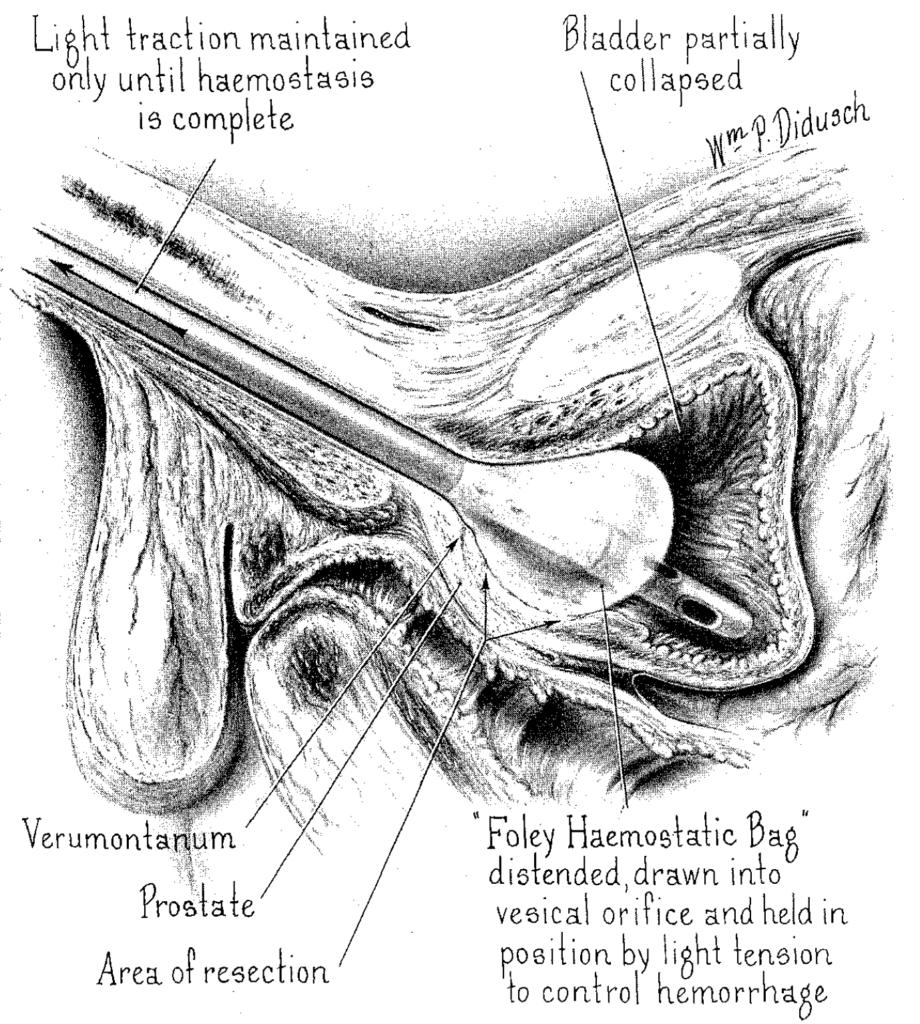 Foley haemostatic bag catheter