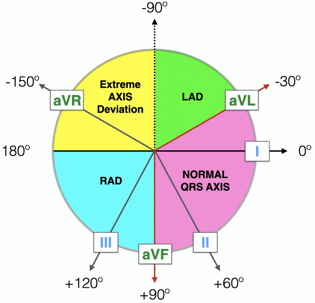 Haxaxial ECG AXIS Reference 2021